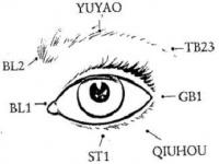 Eye acupuncture