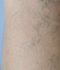 Reduce Varicose Veins with Acupuncture - Acufinder.com